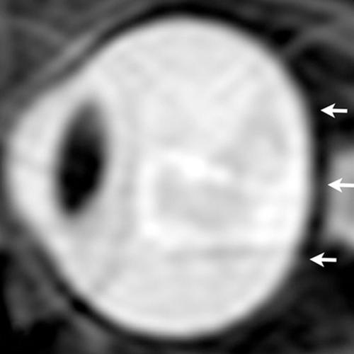 Figure 1. From a study of astronauts in 2012, sagittal oblique T2-weighted MR image of left eye before long-term flight. Note convexity of posterior globe (arrows).