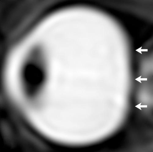 Figure 2. From a study of astronauts in 2012, sagittal oblique T2-weighted MR image of left eye after long-term exposure to microgravity. Note loss of convexity of the posterior scleral margin (arrows).